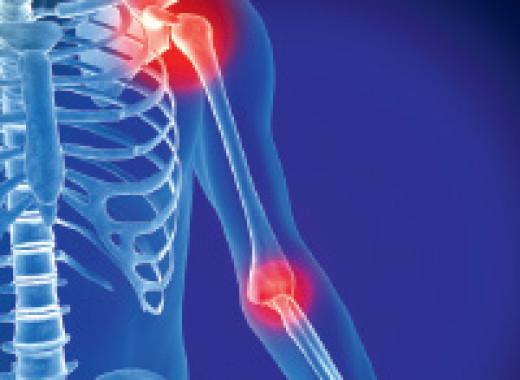Спрей от остеопороза