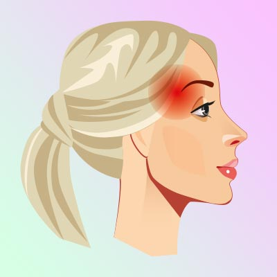 «Пучковая» головная боль, которую также называют кластерной. Интенсивно сверлит голову, чаще в области одного глаза и виска