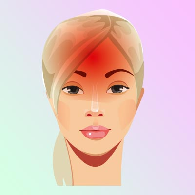 Лекарственная головная боль. Хроническая, слабая, фоновая боль, которая развивается между приступами других головных болей