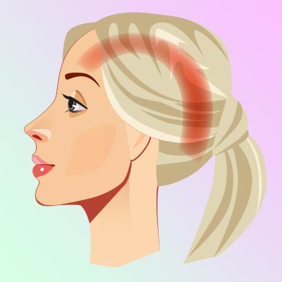 Цервикогенная головная боль, связанная с шейным отделом позвоночника. Боль проходит как бы по дуге от затылка до височной области